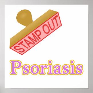 Psoriasis Poster