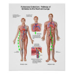 Pulmonary Embolism, Pathway Of Embolus Poster