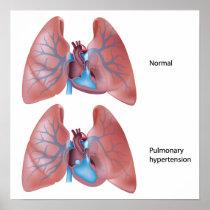 Pulmonary hypertension Poster
