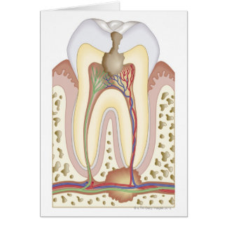 Pulp and Root Abscess Card