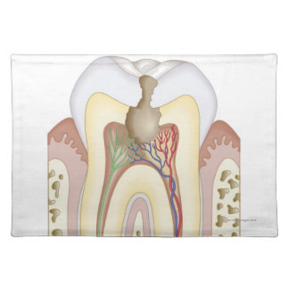 Pulp and Root Abscess Cloth Placemat