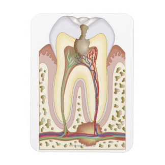 Pulp and Root Abscess Magnet