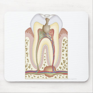 Pulp and Root Abscess Mouse Pad