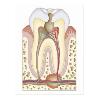 Pulp and Root Abscess Postcard