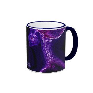 Purple Fushia C-spine X-ray double image mug