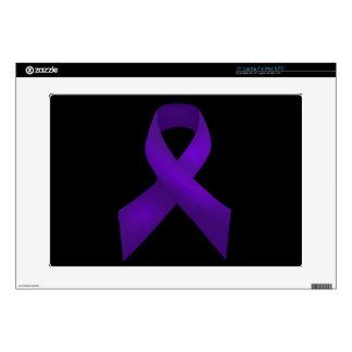 Purple Ribbon Awareness Lupus Laptop Skins