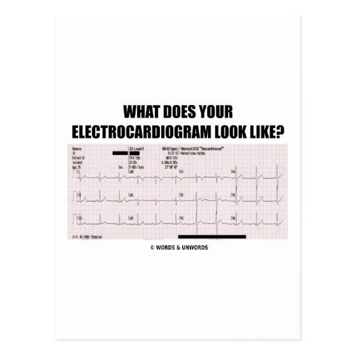 ¿Qué su electrocardiograma parece? Tarjetas Postales