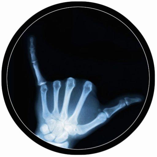 Radiografía de la muestra de Shaka (caída floja) Fotoescultura Vertical