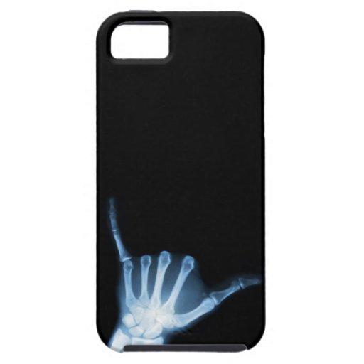 Radiografía de la muestra de Shaka (caída floja) iPhone 5 Carcasas