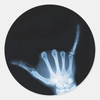 Radiografía de la muestra de Shaka (caída floja) Pegatina Redonda