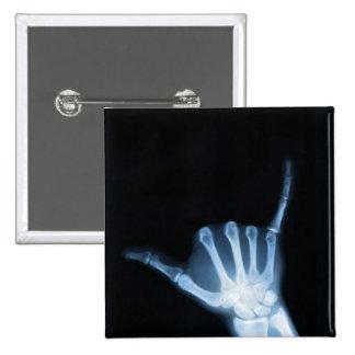 Radiografía de la muestra de Shaka (caída floja) Pins