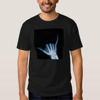 Radiografía de la muestra de Shaka (caída floja) Playera