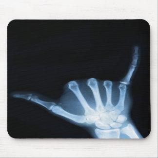 Radiografía de la muestra de Shaka (caída floja) Tapetes De Ratones