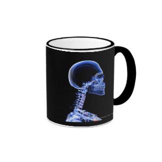 Radiografía de los huesos en el cuello taza de dos colores