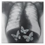 Radiografía de mariposas en el estómago azulejos cerámicos