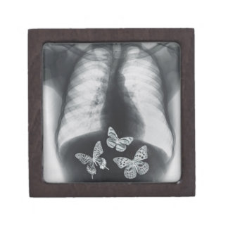 Radiografía de mariposas en el estómago caja de joyas de calidad
