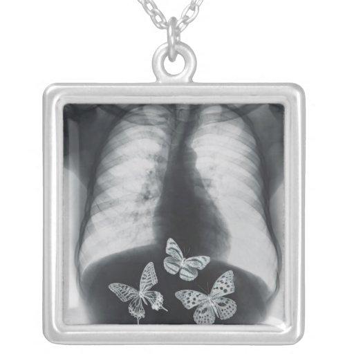 Radiografía de mariposas en el estómago colgantes