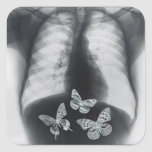 Radiografía de mariposas en el estómago pegatina cuadradas