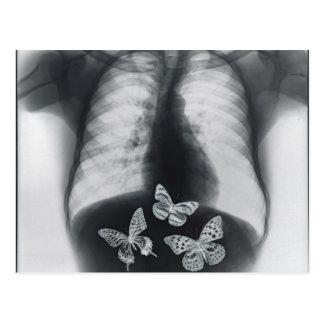 Radiografía de mariposas en el estómago tarjetas postales