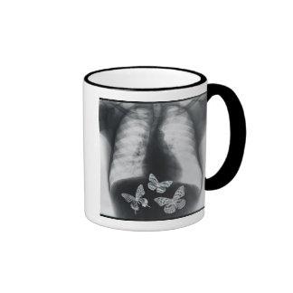Radiografía de mariposas en el estómago taza