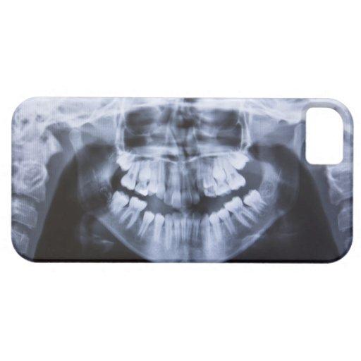 Radiografía de un jawline de los chicas tomado con iPhone 5 funda