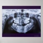 Radiografía de un jawline de los chicas tomado con póster