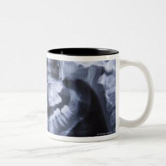Radiografía de un jawline de los chicas tomado con taza de café de dos colores
