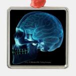 Radiografía del cerebro dentro de un cráneo ornamento para reyes magos