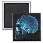 Radiografía del cerebro dentro de un cráneo imán para frigorífico