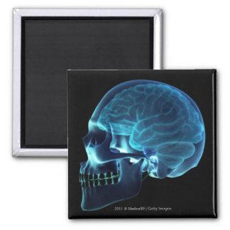 Radiografía del cerebro dentro de un cráneo imán cuadrado