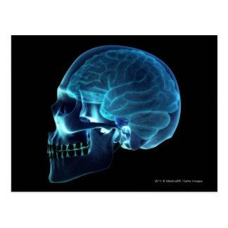 Radiografía del cerebro dentro de un cráneo postal
