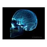 Radiografía del cerebro dentro de un cráneo tarjetas postales