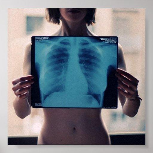 radiografía del pecho de los chicas póster