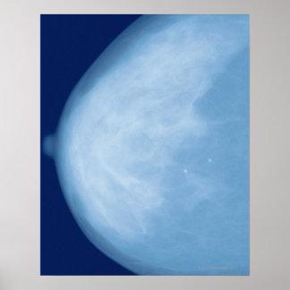 Radiografía del pecho femenino, vista lateral póster