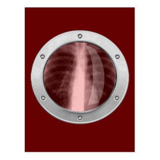 Radiografía en su pecho postales