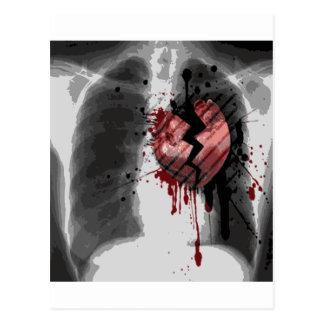 Radiografía Hearted quebrada Tarjetas Postales