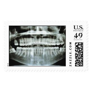 Radiografía Envio