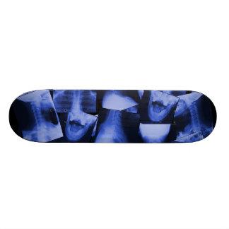 Radiografiado - azul electromágnetico patineta personalizada