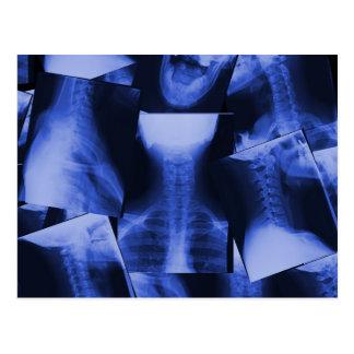 Radiografiado - azul electromágnetico postal