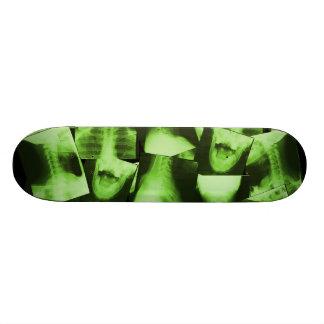 Radiografiado - verde radiactivo tabla de patinar
