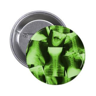 Radiografiado - verde radiactivo pin