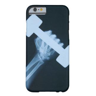 Radiografíe la imagen de la mano humana con el funda barely there iPhone 6