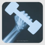 Radiografíe la imagen de la mano humana con el pegatina cuadrada