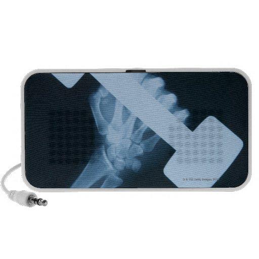 Radiografíe la imagen de la mano humana con el pes portátil altavoces