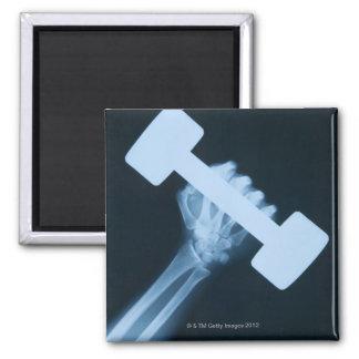 Radiografíe la imagen de la mano humana con el pes iman para frigorífico