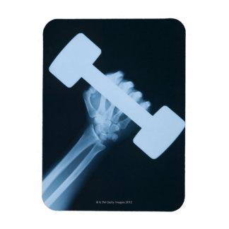 Radiografíe la imagen de la mano humana con el pes imanes rectangulares