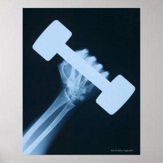 Radiografíe la imagen de la mano humana con el pes póster