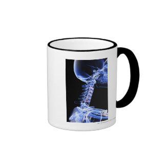 Radiografíe la imagen de los huesos del cuello taza de café