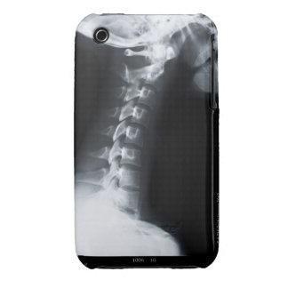 Rayo X de las vértebras del cuello incluyendo el iPhone 3 Case-Mate Carcasas