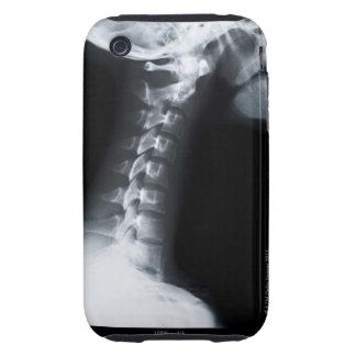 Rayo X de las vértebras del cuello incluyendo el iPhone 3 Tough Cárcasa